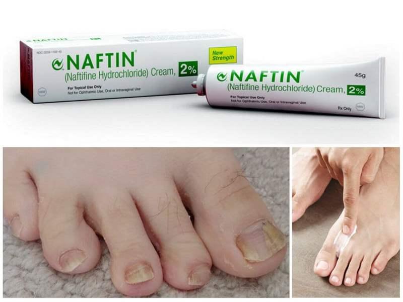 8492 ЕСТЕЗИФІН - Naftifine