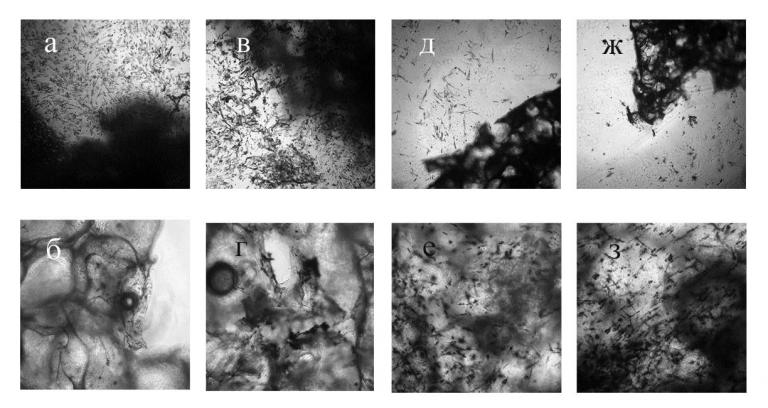 23882 ХОНДРО-РІЦ® - Chondrocytes, autologous