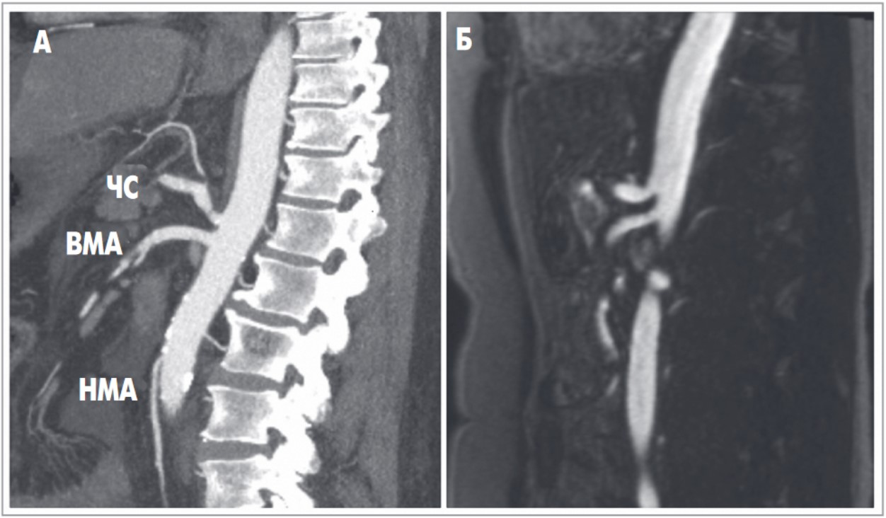 25945 Новий підхід до візуалізації хронічного болю з використанням ПЕТ-МРТ