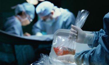 """26290 Как можно сделать """"старые"""" органы пригодными для трансплантации?"""
