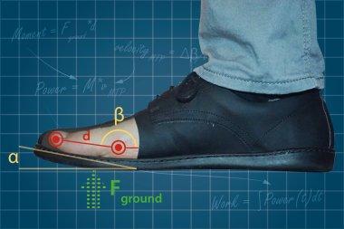 26562 Приподнятый носок обуви может вызывать плантарный фасциит
